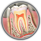 Root Canal Treatment Sicklerville & Voorhees