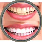 Teeth Whitening Sicklerville & Voorhees